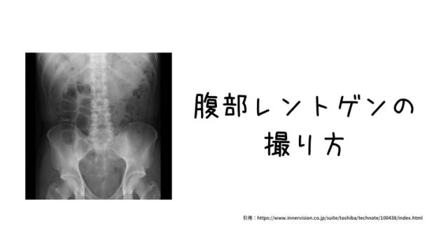 X線撮影|腹部レントゲンの撮り方|放射線技師ヤマトのブログ